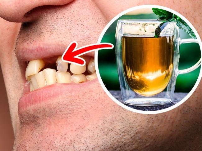 TOP những thực phẩm ảnh hưởng đến sức khỏe răng miệng 2