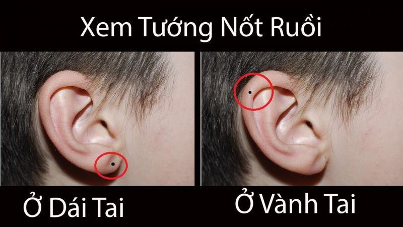Tổng hợp ý nghĩa các vị trí nốt ruồi ở tai