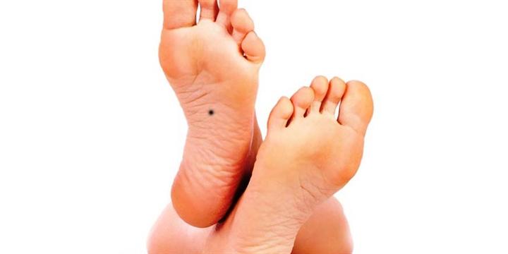 Nốt ruồi ở lòng bàn chân nói lên điều gì về vận mệnh?