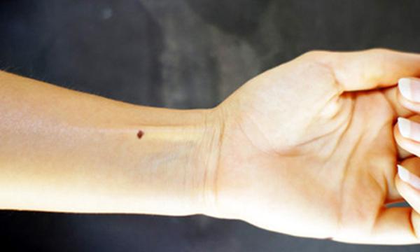 nốt ruồi ở cổ tay nói lên điều gì?