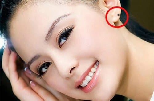 Nốt ruồi ở vành tai