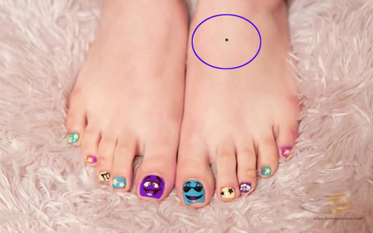 Nốt ruồi trên mu bàn chân